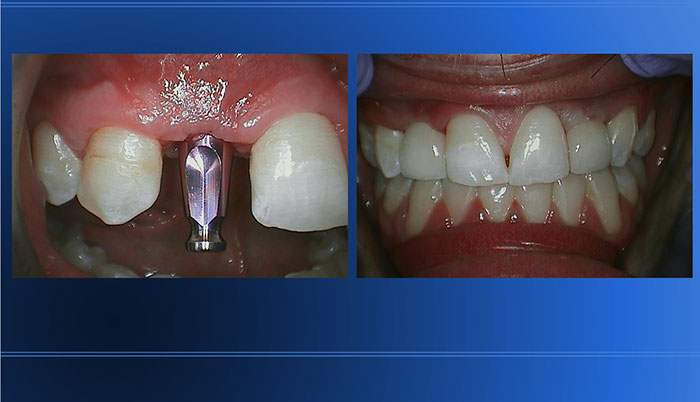 """Fake"" Tooth (aka Abutment) Replacing Missing Tooth"