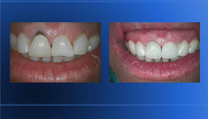 30 Years Old Post & Crown Replaced with Ceramic Crowns
