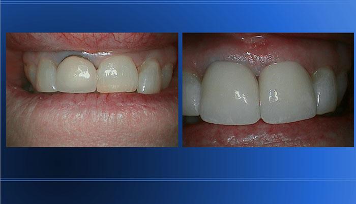 Short, worn out teeth