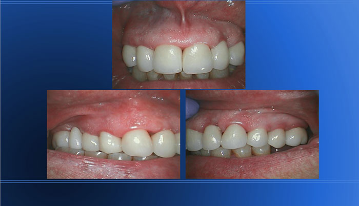 Erosion, Bulimia, Bruxism Treated with Full MX Crowns