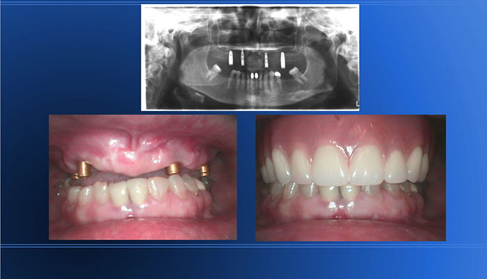 Full MX Arch Ext followed by Implant Supported Overdenture