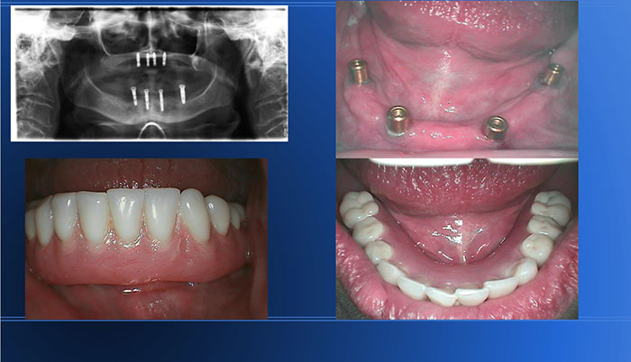 Full Mouth Ext and MX / MD Implants Supported Overdentures