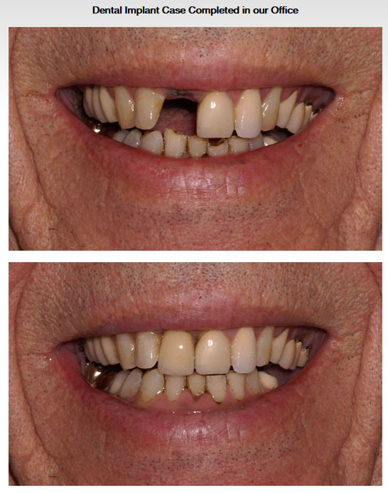 A Dental Implant Case Completed at Our Office